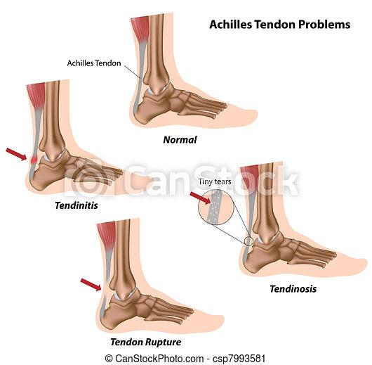 Achillessehnenprobleme, - csp7993581