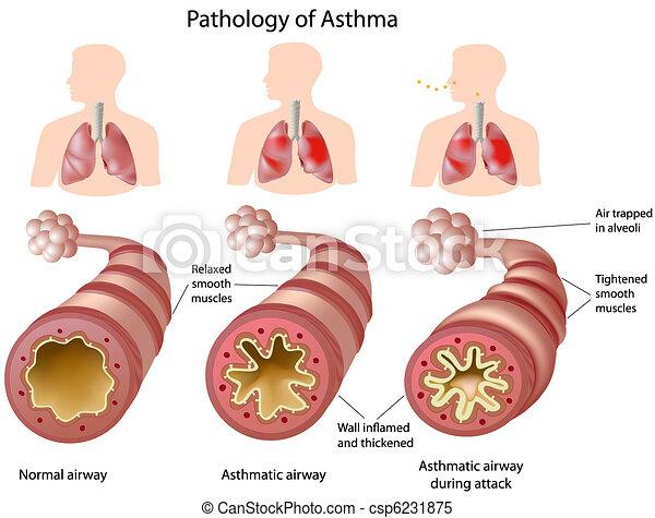 Anatomy des Asthmas. - csp6231875