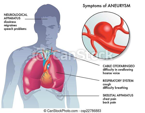 Aneurysma-Symptome. - csp22786883