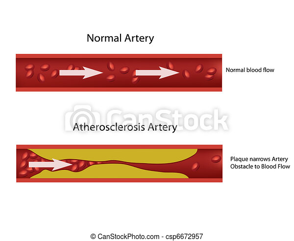 arterie, atherosklerose - csp6672957