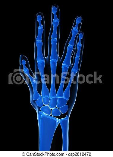 arthritis - csp2812472