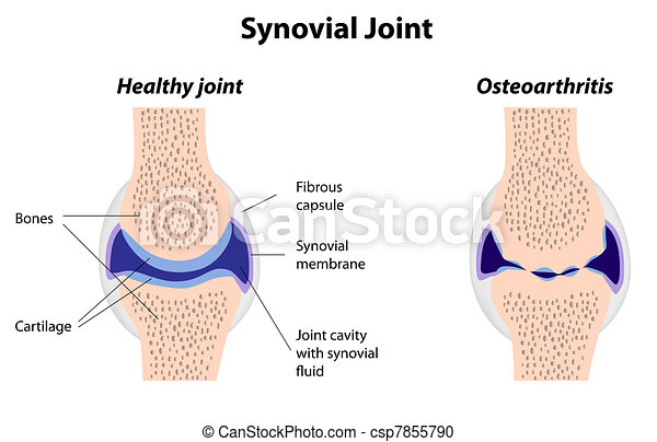 Synovialgelenk normal und Arthritis - csp7855790