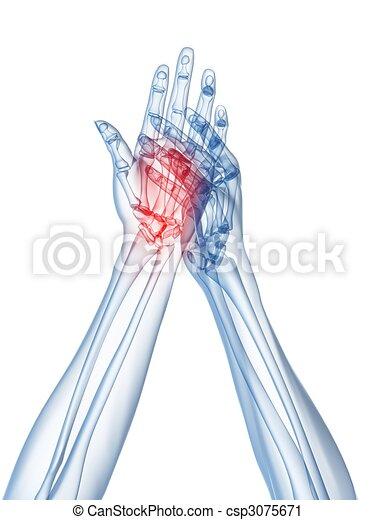 arthritis, hände, röntgenaufnahme, - - csp3075671
