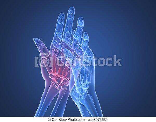 Röntgen-Hände - Arthritis - csp3075681