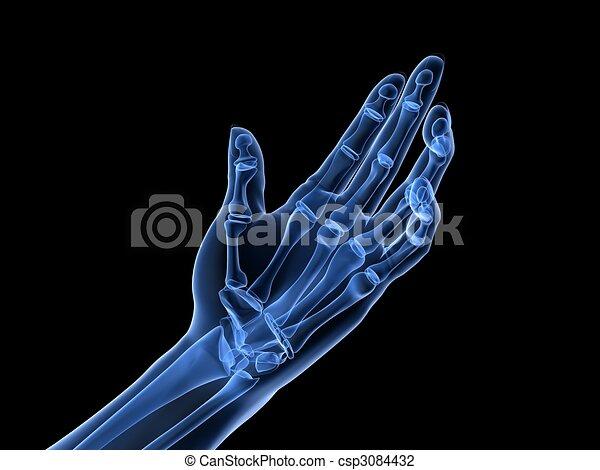 arthritis, handröntgenaufnahme, - - csp3084432