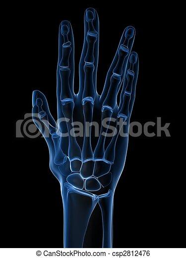Arthritis - csp2812476