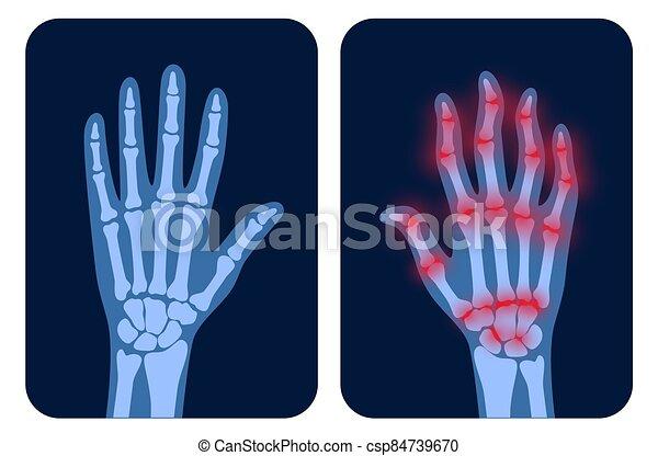 arthrits, strahl, x - csp84739670