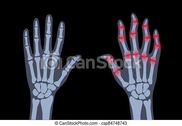 arthrits, x strahl - csp84748743