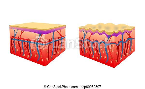 Vector Illustration von zwei Hauttypen, die Cellulite zeigen - csp60259807
