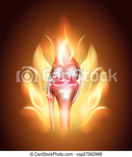 Knie, Gelenkschmerzen, brennendes Knie - csp27062998