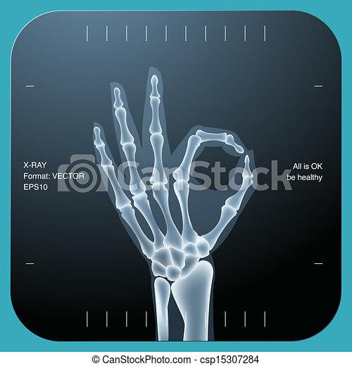 Röntgen von beiden menschlichen Händen - OK-Symbol - csp15307284