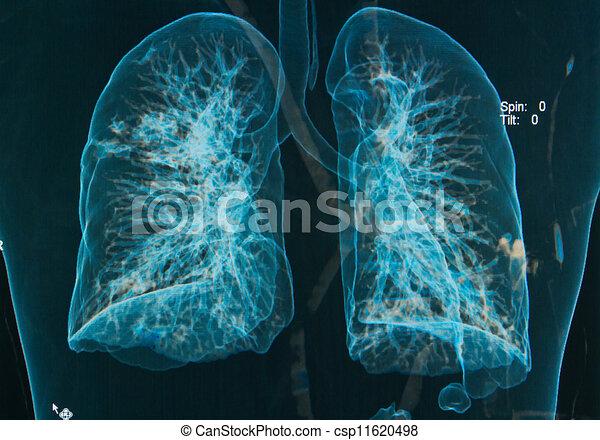 bild, brust, unter, röntgenbilder, 3d - csp11620498