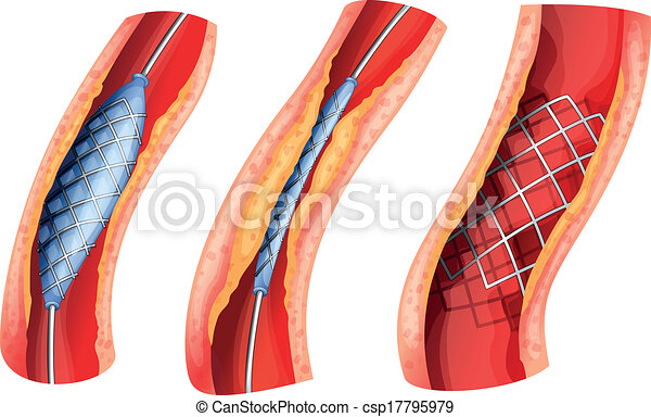 Stent öffnete die blockierte Arterie - csp17795979