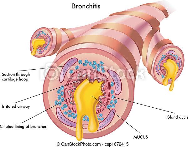 Bronchitis. - csp16724151