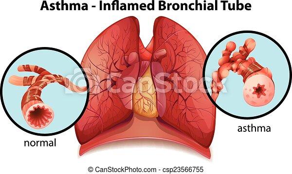 Eine asthmainflamierte Bronchialröhre. - csp23566755