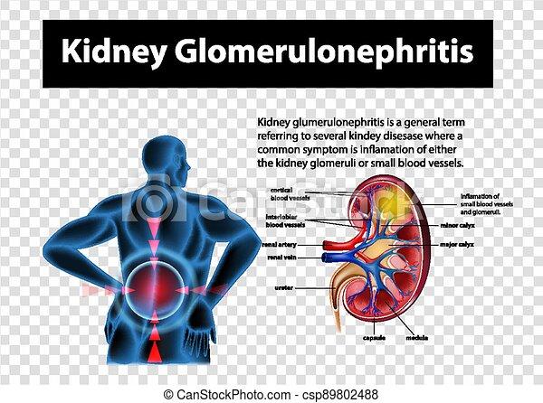 glomerulonephritis, niere, durchsichtig, hintergrund, ausstellung, diagramm - csp89802488