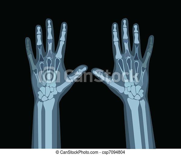 hände, röntgenaufnahme - csp7094804