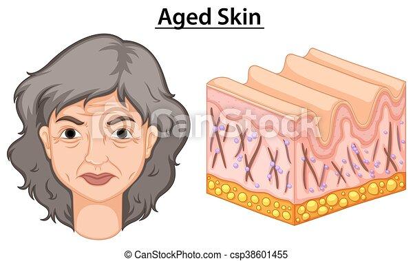 Diagramm zeigt Frauen mit alter Haut - csp38601455