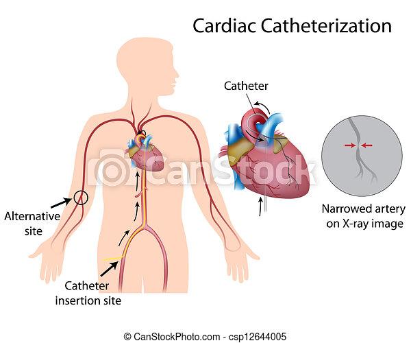 Herzkatheterisierung, eps10 - csp12644005