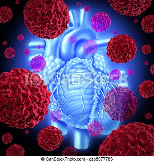 Menschlicher Herzkrebs - csp8377785