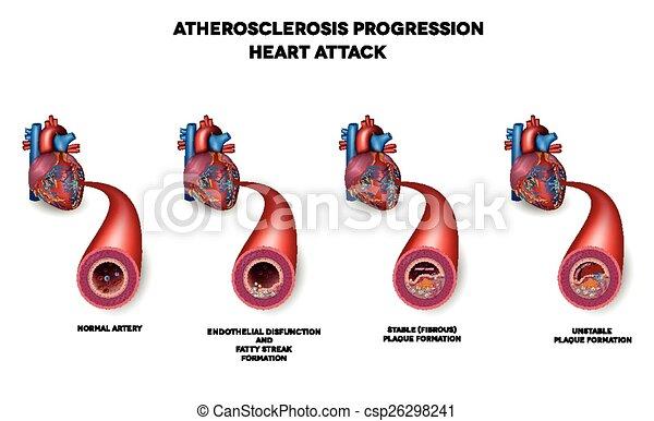 Herzinfarkt, Herzarterie - csp26298241