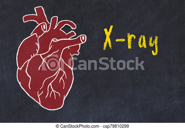 inschrift, herz, röntgenaufnahme, begriff, zeichnung, kardiovaskulär, tafelkreide, menschliche , system., lernen - csp79810299