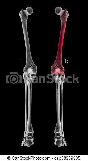 koerperbau, ansicht, schmerz, röntgenaufnahme, bein, farbe, höhepunkte, medizin, illustration-healthcare-human, schenkelbein, hinterteil, schwarz, biomedizinisch, menschliche , concept-, right-, weißes, links, knochen, area-3d, rotes  - csp58389305