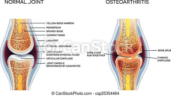 koerperbau, gelenk, osteoarthritis, normal - csp25354464
