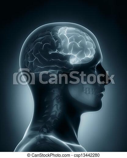 Frontallappen, medizinische Röntgenaufnahme - csp13442280