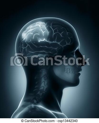 lappen, medizin, parietal, röntgenaufnahme, überfliegen - csp13442340
