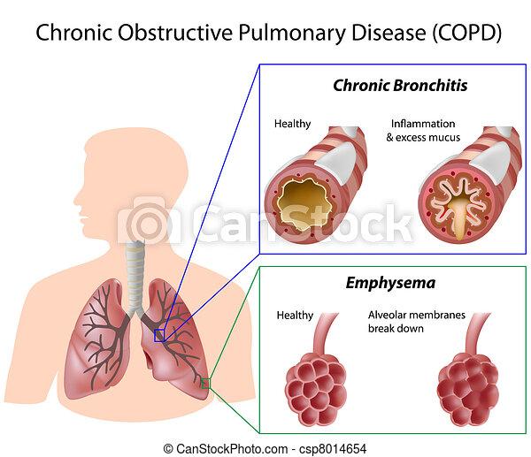 Lungenkrankheit, Eps8 - csp8014654