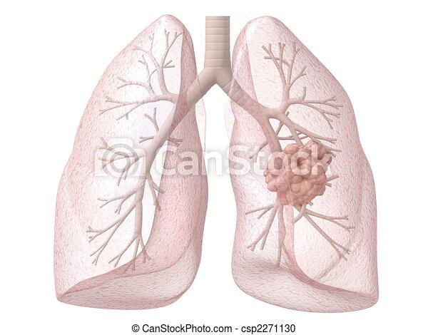 Lungenkrebs - csp2271130