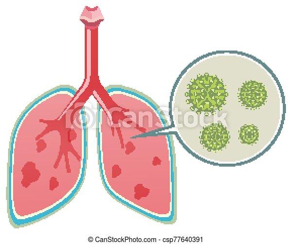 menschliche , ausstellung, coronavirus, diagramm, lungen - csp77640391