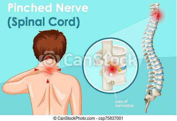nerv, diagramm, gekniffen, ausstellung, menschliche  - csp75837001