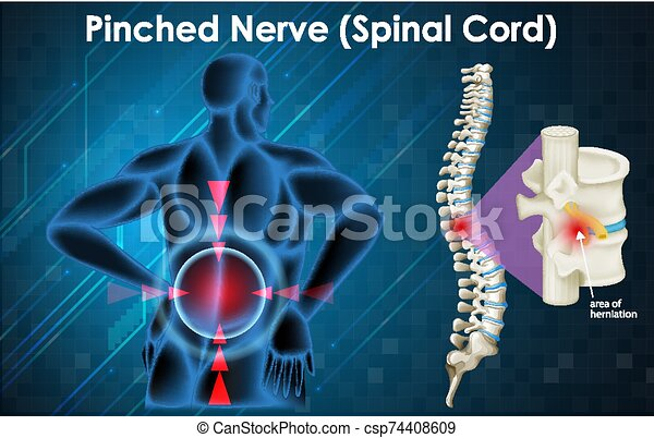 nerv, menschliche , gekniffen, diagramm, ausstellung - csp74408609