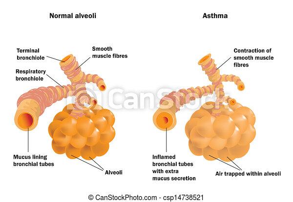 Lung Alveoli normal und Asthma - csp14738521