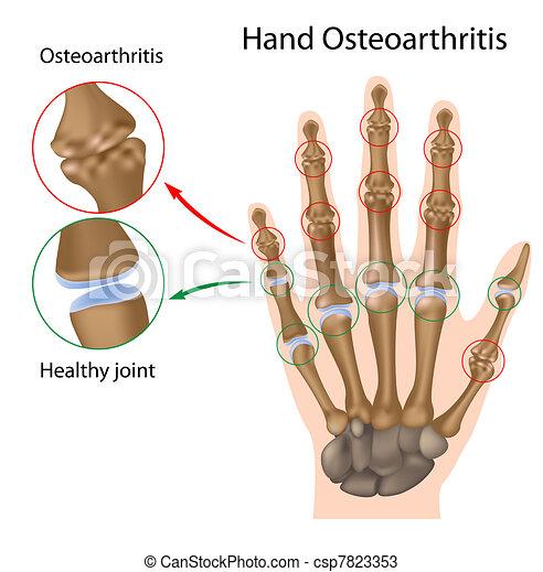 Osteoarthritis der Hand, Eps8 - csp7823353