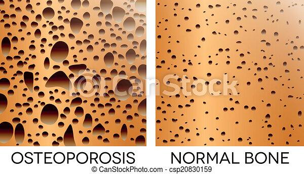 Osteoporose, ungesunde Knochen - csp20830159