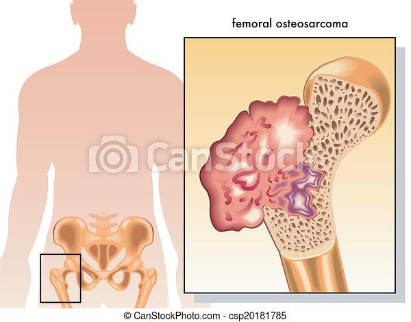 osteosarcoma, femoral - csp20181785