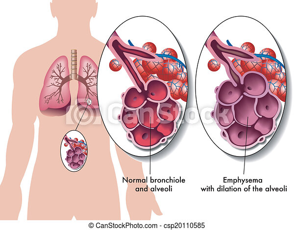 Pulmonäres Emphysem. - csp20110585