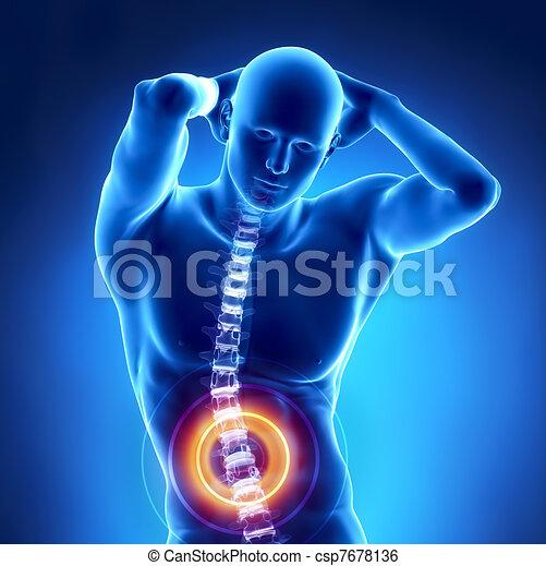 rückgrat, problem, menschliche , röntgenaufnahme, lumbal - csp7678136