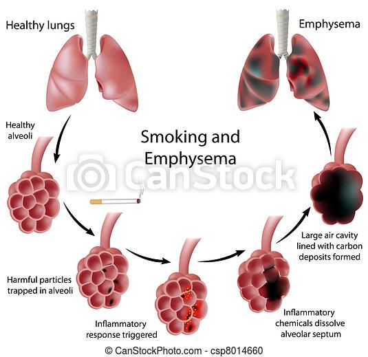 Rauchen und Emphysem, Eps 8. - csp8014660