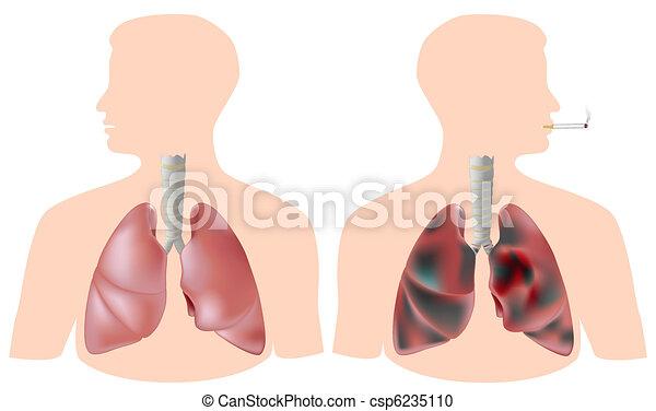 Raucher gegen gesunde Lunge - csp6235110