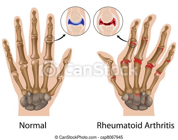 Rheumatoid Arthritis der Hand, Eps8 - csp8067945