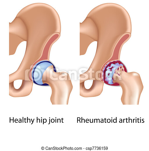 Rheumatoid Arthritis in Hüftgelenk - csp7736159