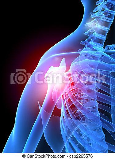 Schmerz in der Schulter - csp2265576