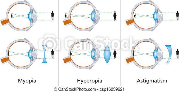 Sichtfehler - csp16259621