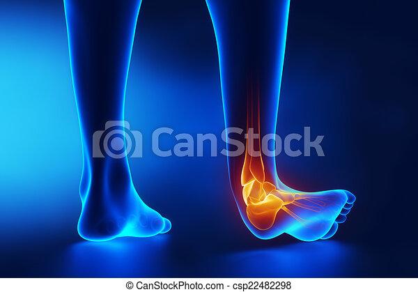 sprained, knöchel, blaues, röntgenaufnahme - csp22482298