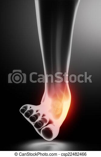 sprained, knöchel, schwarz, röntgenaufnahme - csp22482466