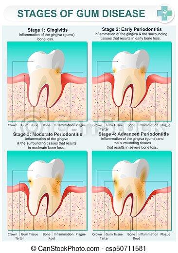 Stadium der Zahnfleischkrankheit - csp50711581